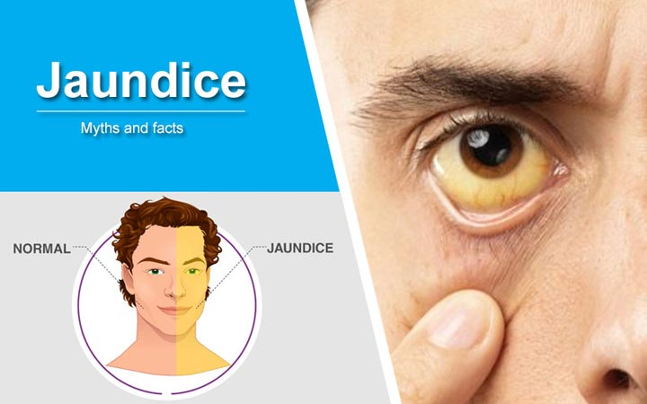 Jaundice-Myths-And-Facts