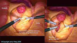 Laparoscopic Pancreas Surgery