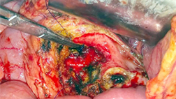 Opened Up Pancreas with Stone Removed