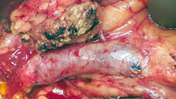 Remaining Pancreas After removal of Cancer