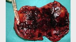 cut-section-of-resected-liver-tumor