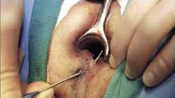 fistula-surgery