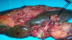 intrahepatic-duct-with-tumor