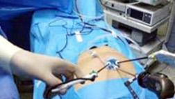 single-incision-lap-surgery