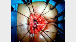 transectal-surgery