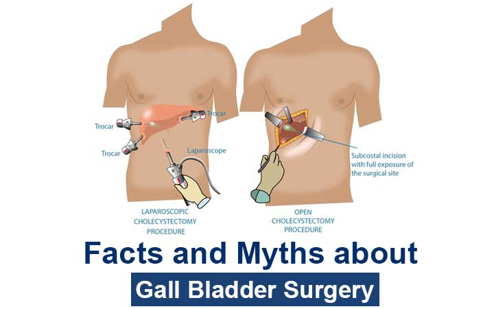 facts-about-gall-bladder-surgery